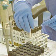 Faltan reactivos para pruebas moleculares (Expreso)
